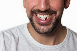 Dental Implants, bridges and more tooth replacement options in West Edmonton