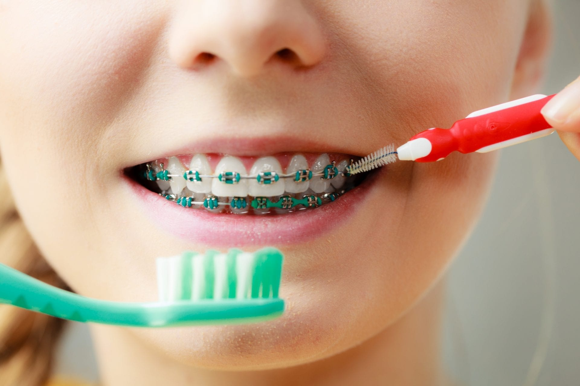 Brushing your teeth with braces